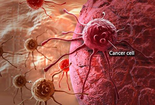 Karcinom