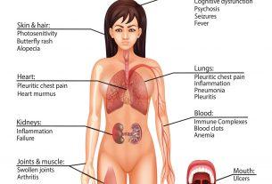 Sistemski lupus