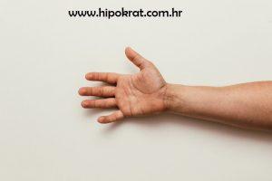 Sindrom karpalnog kanala