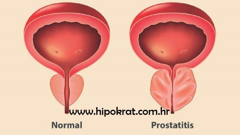 Prostatitis simptomi