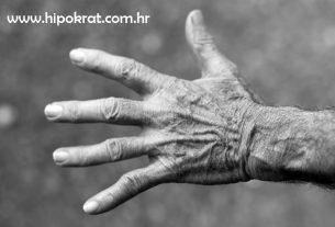 Reumatoidni artritis