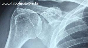 Hrana za jače kosti i zglobove