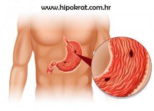 Čir želuca i čir dvanaesnika mogu se opisati kao ograničena oštećenja sluznice probavnog sustava koji prodiru kroz mišićni sloj sluznice, ostavljajući pri cijeljenju ožiljak.