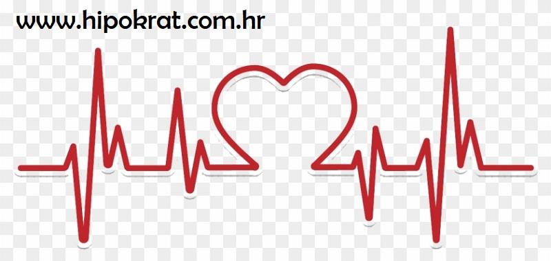 Bradikardija (usporen rad srca)