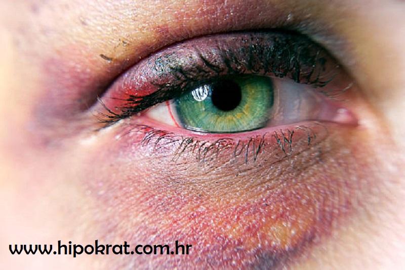 Modrica oko oka