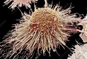Što je makrofag