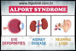 Alportov sindrom (hereditarni nefritis)